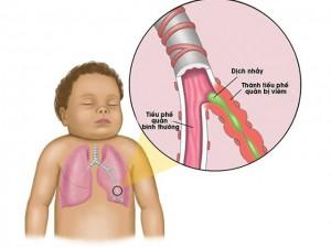 piek zuigelingen tussen 2 en 6 maanden, bij 3 jr vrijwel alle kinderen doorgemaakt. oudere kinderen/volwassenen BLWI, jongere kinderen uitbreiding naar OLWI: bronchiolitis.